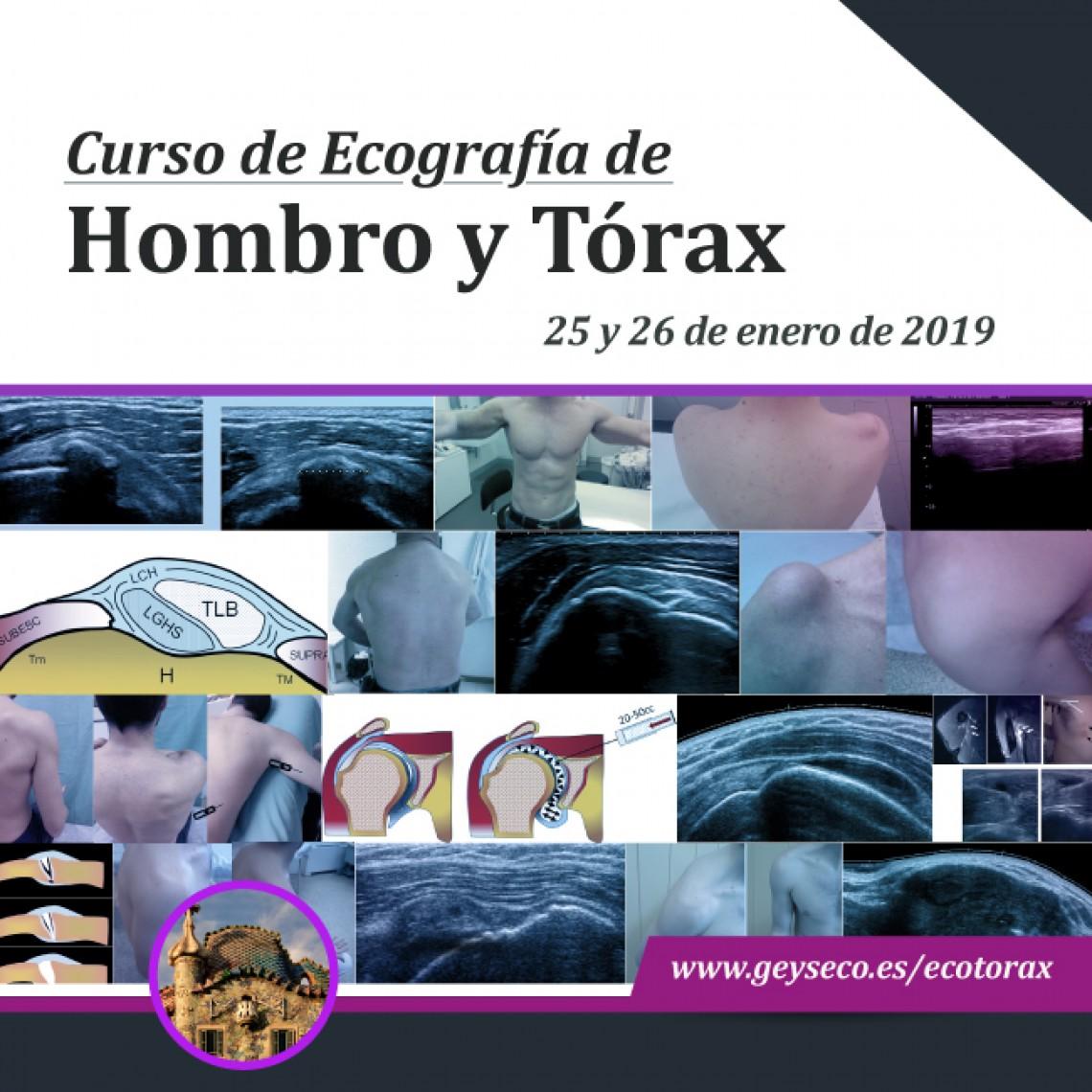 Curso de Ecografía de Hombro y Tórax