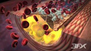Aterosclerosis relacionada con la Diabetes