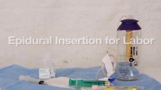Colocación de cateter epidural durante el trabajo de parto