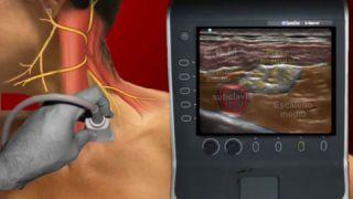 Bloqueo del plexo cervical superficial ecoguiado